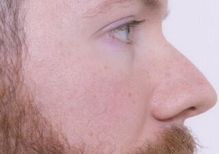 鼻が大きい男性の横顔